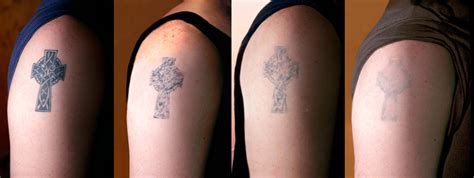 searching  tattoo removal   visit   miami