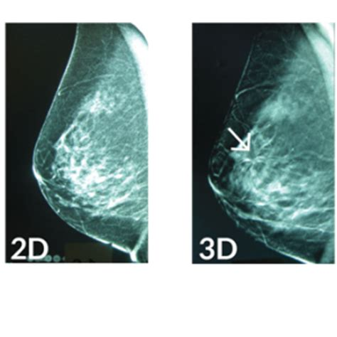 Digital Breast Tomosynthesis - Premier Women's Radiology