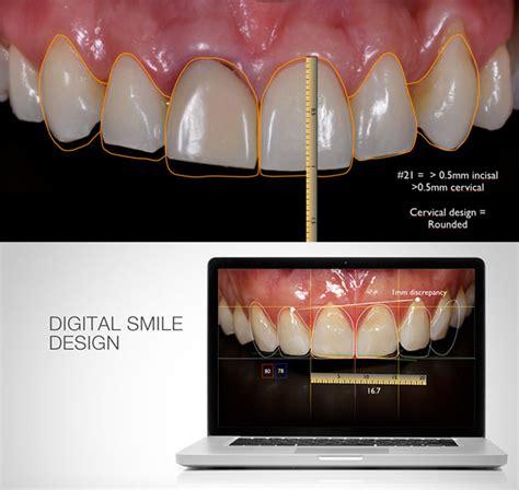 smile by design custom smile design cosmetic dentist gold coast