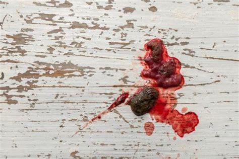 dog vomit blood common