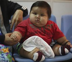 Colombia's fattest baby rescued by charity for life-saving ...