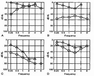 Audiometric Findings In Otosclerosis  A  Conductive