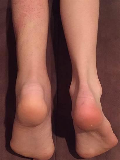 Foot Comparison Taken November