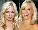 Anna Faris before and after plastic surgery 08 – Celebrity ...