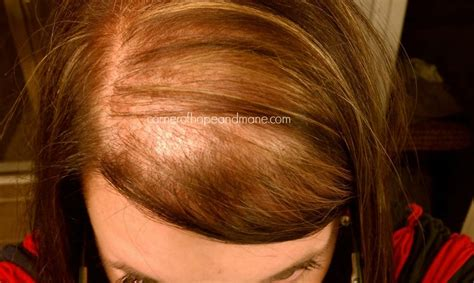 Hairstyle To Hide Balding Crown