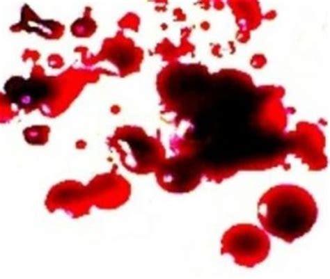 Blood Clots In Stool - how can i treat hemorrhoids at home makehemorrhoidsgoaway