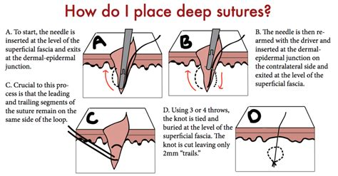 Closing The Gap Deep Sutures — Taming The Sru. Massage Therapy Schools In Massachusetts. Life Insurance Powerpoint Online Savings Bank. Nevada Corporate Income Tax Led Lumen Output. Online Bachelors Degree Computer Science. Car Dealer Portland Oregon Send Online Faxes. Appliance Repair Las Vegas Nv. Online Masters Social Work Program. Winter Park Ski Resort Lift Tickets