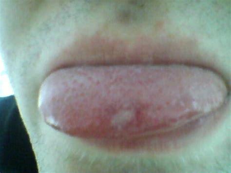 schmerzhafte stelle auf der zunge schmerzen mund