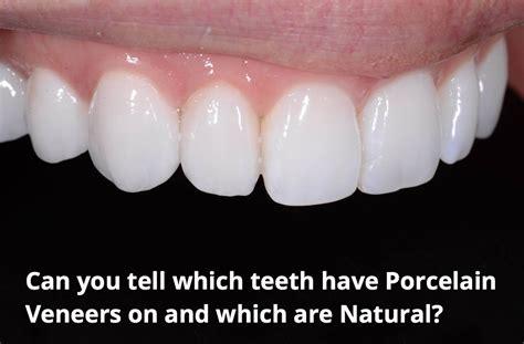 top perth dentist reveals