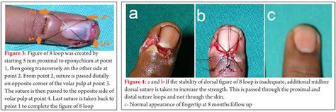 Nail Bed Laceration by Finger Tip Injury Nail Bed Laceration Partial Nail Plate