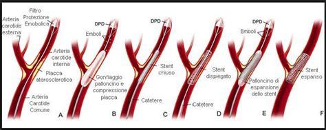 Kinking Carotide Interna Sintomi Angioplastica Delle Carotidi E Tronchi Sovra Aortici