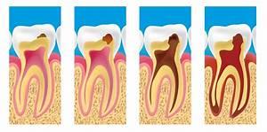 2.4 Billion People Worldwide Suffer From Dental Caries