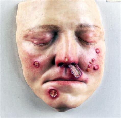 herpes schmerzen bei guertelrose sind oft kaum auszuhalten