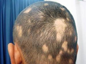 Haarziekte kale plekken