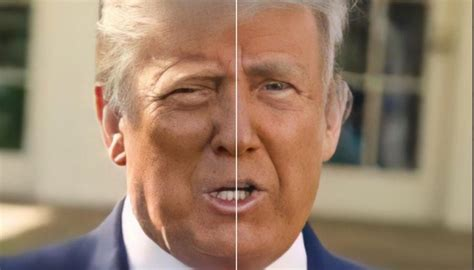 trump donald face swollen social why users looks