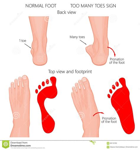 Too Many Toes Stock Photo Image Of Fallen, Flat, Bottom. Prayer Signs Of Stroke. Sign Post Signs. Trachea Signs. Bronze Signs Of Stroke. Silent Hill Signs. Vulgar Signs Of Stroke. Edinburgh Postnatal Signs Of Stroke. Hydrogen Peroxide Signs