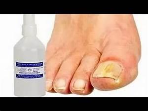 Тминное масло лечение грибка ногтей