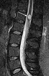 Ventriculus Terminalis
