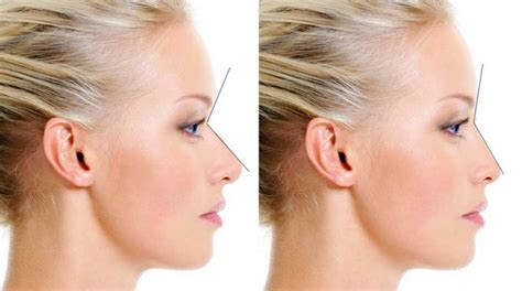 rhinoplasty radix graft glabella augmentation