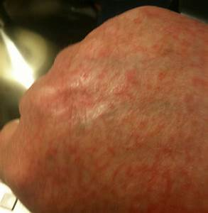 Bumpy Itchy Rash On Hands Pictures to Pin on Pinterest ...