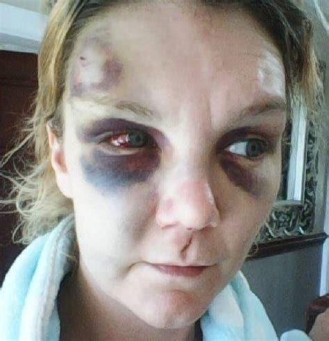 Domestic abuse victim releases shocking pictures of her ...