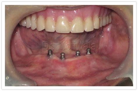 jaw full arch dr motiwala dental clinic implants