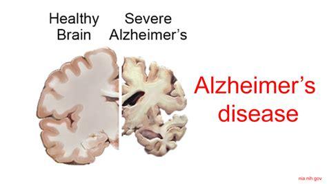 Molecular genetics of alzheimer's disease. New breakthrough : Dietary supplements can improve ...