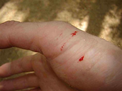 snake bite snake bite first aid
