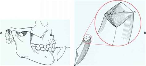 s envelope of movement border movements tooth structure derick mussen healthcare