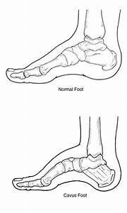 cavus foot high arched foot With in addition this eye disease may occur because of the following