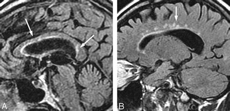 lyme neuroborreliosis manifestations   rapidly