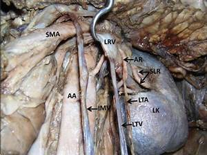 A peculiar accessory renal artery giving origin to the ...