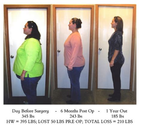Pros And Cons Of Weightloss Surgery  Firsthealth. University Of Caribbean Online P H D Programs. Auto Insurance In New Orleans. Extension Courses Online Attorneys Orlando Fl. Fertility Clinic Portland Oregon. We Buy Commercial Property Thin Cornea Lasik. Greene County Tech School Ford Fusion Mondeo. School For Democracy And Leadership. Stages Of Nicotine Withdrawal