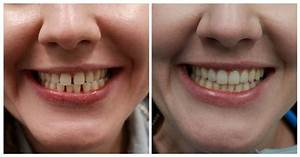 Invisalign Braces Before And After Gaps | www.pixshark.com ...