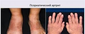 Заболевания кожи псориаз на лице
