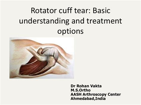 Rotator Cuff Tear And Its Management
