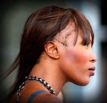 just natural alopecia hair loss hair loss beauty pains