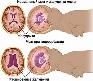 У ребенка повышенное внутричерепное давление симптомы и лечение