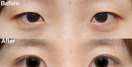 做双眼皮手术会有哪些后遗症,会出现什么不良反应 - 20Young医美科普_问答社区_新势力