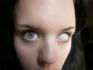 Kontaktlinse einsetzen - YouTube
