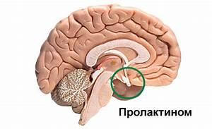 Аденом гипофиза лечение