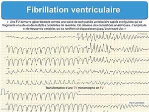 Fibrillation Ventriculaire  Fv   E