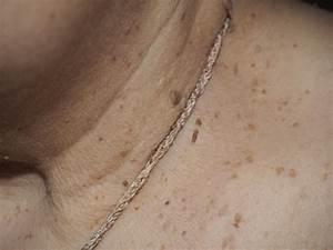 Папилломы на шее причины и лечение у детей