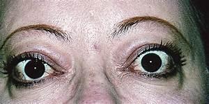 Grading Soft Tissue Metrics In Thyroid Eye Disease