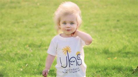Doença rara faz menina ter cabelo igual ao de Einstein ...