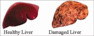 Herbs For Liver Disease