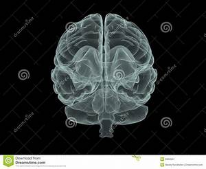 X-ray Brain Royalty Free Stock Photography - Image: 9384847