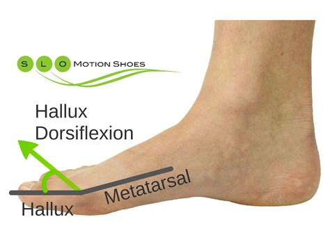 the passive treatment of hallux limitus slo motion shoes