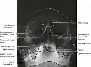 13  Skull And Maxillofacial Radiography