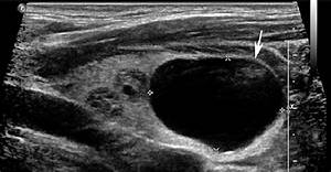 Cyst  A 29 Year Old Female With Multiple Known Thyroid Nodules And